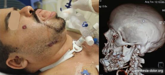 Imagenes de Trauma facial y VA