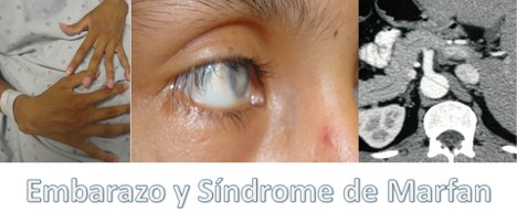 Embarazo y sindrome Marfan